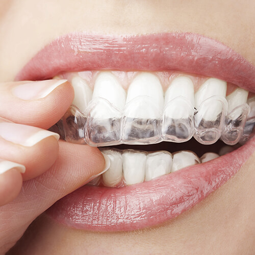 A patient putting on her Invisalign clear aligners
